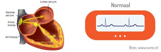 afbeelding ventrikelfibrilleren