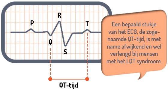 illustratie ecg lange QT syndroom